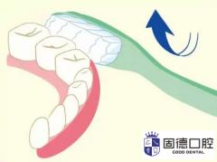 牙齿松动是什么问题?