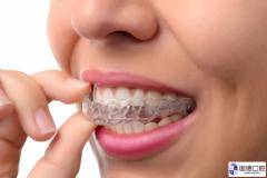 东莞隐形矫正:戴哪种牙套