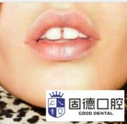 牙缝大怎么办?牙缝大能补吗?