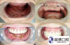全口牙缺失可种植牙吗?东莞口腔