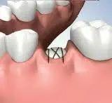 牙齿缺失后进行义齿修复为什么要
