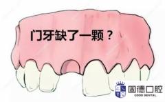 东莞门牙修复:门牙修复做烤瓷牙
