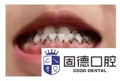 高埗儿童口腔医院:孩子牙齿上的