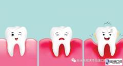 东莞口腔医院:如何预防牙齿松动