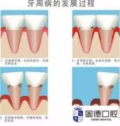 东莞麻涌牙周炎治疗:牙周