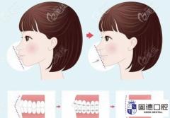 东莞长安儿童牙齿矫正:早期牙齿