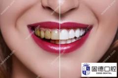 东莞牙齿贴面价格:牙齿贴面多少