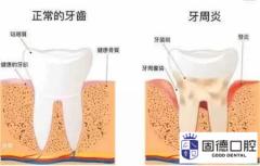 接吻会传染牙周炎吗?