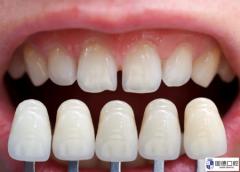 东莞全瓷牙哪里做的好?全瓷牙会