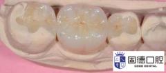 东莞沙田补牙:牙齿蛀牙怎么补牙