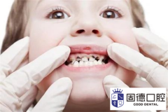 望牛墩儿童口腔医院:乳牙龋坏不