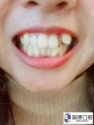 东莞虎牙矫正:长歪的虎牙