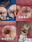 牙齿上的小黑点,到底是个