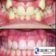 东莞成人牙齿正畸费用一般是多少
