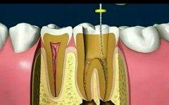 东莞长安根管治疗:蛀牙到什么程