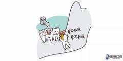 东莞桥头拔智齿:深藏不露的智齿