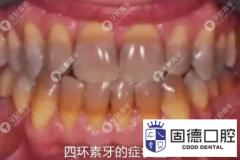 四环素牙该如何美白呢?