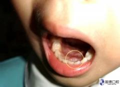 大岭山儿童口腔医院:正在换牙的