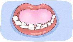 塘厦儿童口腔医院:乳牙掉了恒牙