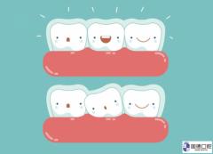 东莞厚街隐形牙齿矫正:隐形矫正
