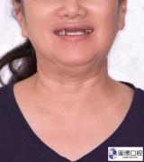 东莞半口牙种植:63岁阿姨自述:
