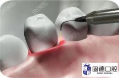 东莞黄江洗牙:洗牙贵和洗牙便宜