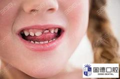东莞儿童牙齿价格表汇总 包含MRC