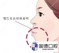 东莞道滘龅牙矫正:牙齿前突可以