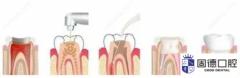东莞塘厦根管治疗:什么是根管治