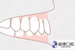 东莞沙田龅牙矫正:上牙包住下牙