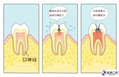 东莞清溪根管治疗:什么是根管治