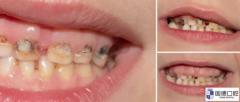 谢岗儿童口腔医院:乳牙龋齿脱矿