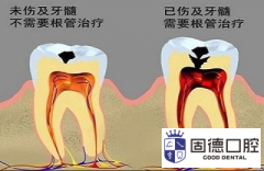 东莞黄江补牙:得了蛀牙是补牙还