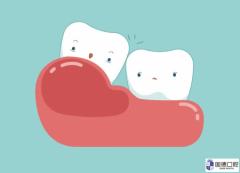 中堂拔智齿:智齿把前面的牙顶坏