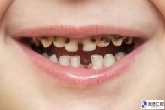 横沥儿童口腔医院:孩子为什么容