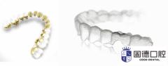 东莞黄江隐形牙齿矫正:隐形矫正