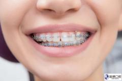 凤岗儿童牙齿矫正:孩子牙齿不齐