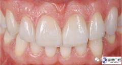 隐形矫正结合瓷贴面关闭上颌前牙