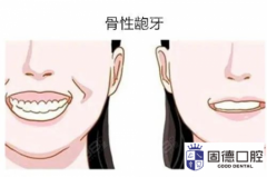 东莞沙田龅牙矫正:骨性龅牙一定