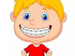 东莞寮步儿童牙齿矫正:孩