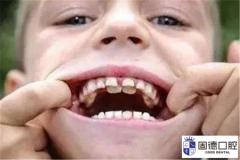 什么是乳牙滞留?乳牙滞留