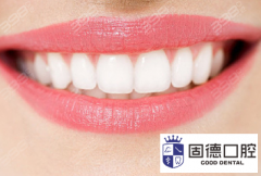 莞城口腔正畸:成人牙齿矫正大概