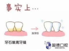 东莞企石洗牙:洗牙牙缝会被洗的
