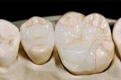 东莞寮步补牙:没洞蛀牙需要补牙