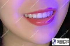 龅牙做隐形矫正有用吗?