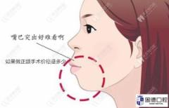 凸嘴做正颌手术价格一般是多少钱