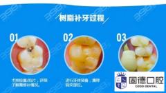 东莞常平补牙:3m树脂补牙和普通