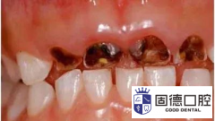 麻涌儿童口腔医院:乳牙龋病那些