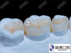 东莞谢岗补牙:嵌体补牙和树脂补