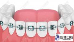 早期牙齿矫正能改变或促进